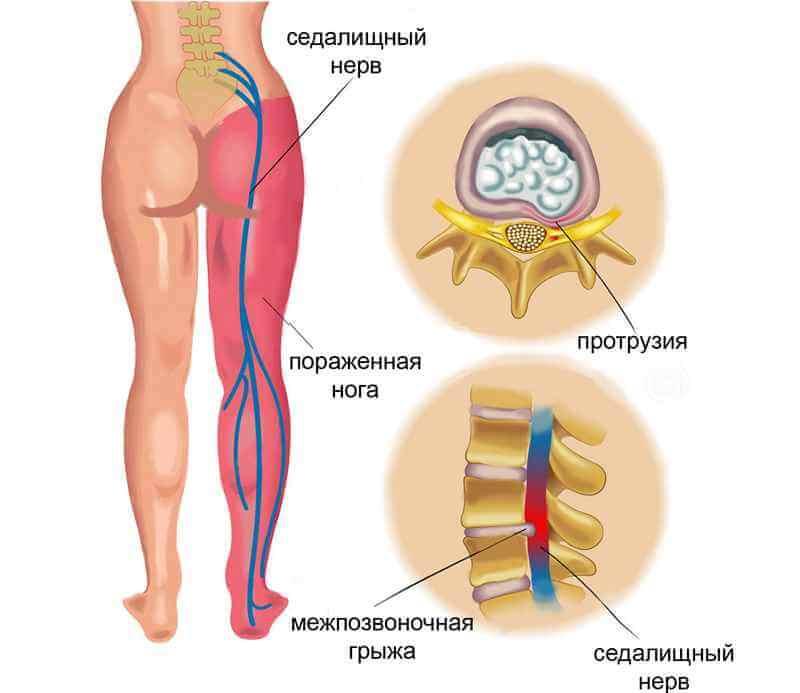 Защемление седалищного нерва на ноге