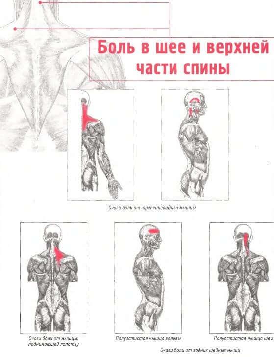 Классификация болей в области шеи