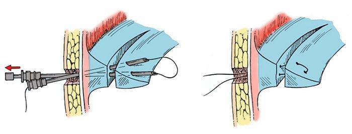 Операция артроскопии