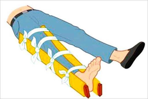 Шина на перелом ноги