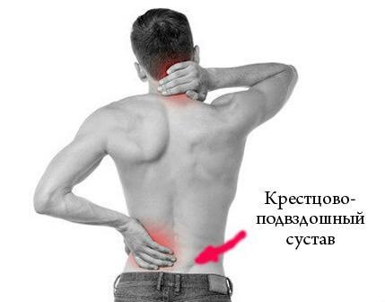 Воспаление крестцово-подвздошного сустава