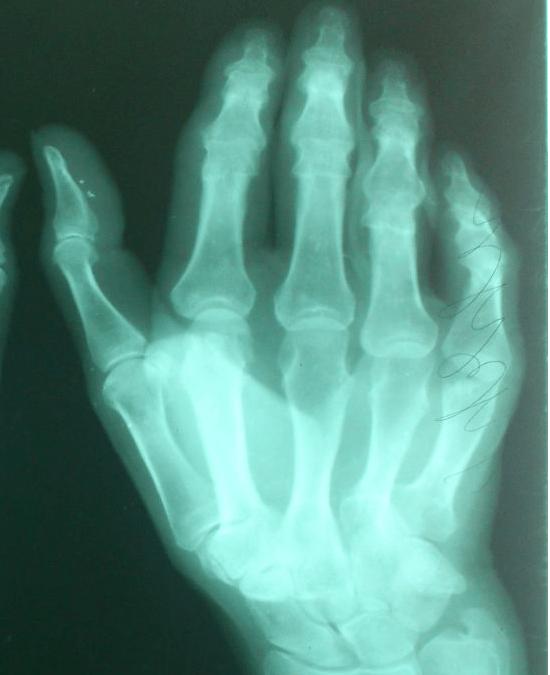 Диагностика контрактура дюпюитрена