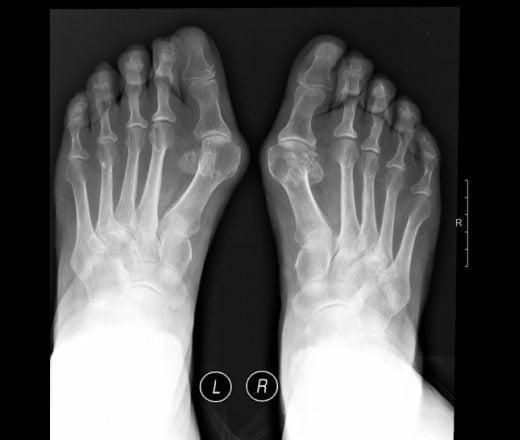 Диагностика вальгусная деформация стопы
