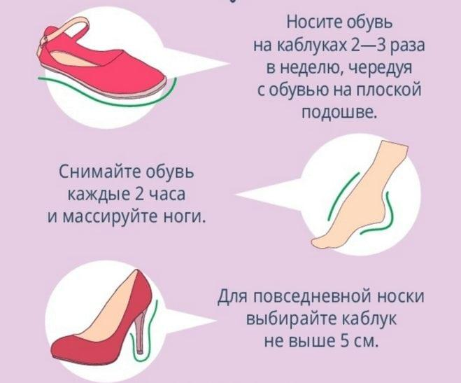 Лечение вальгусной деформации стопы
