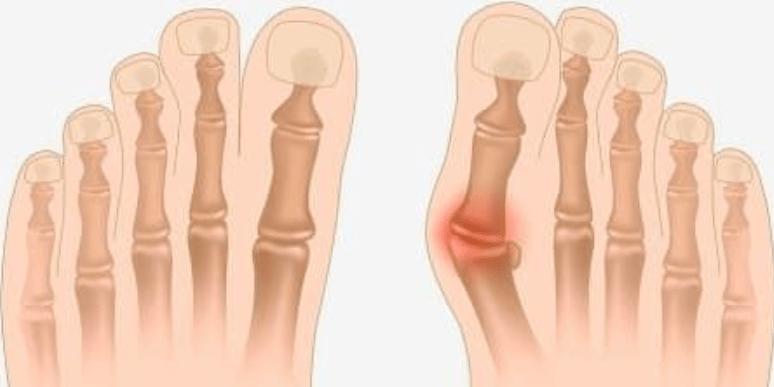 Вальгусная деформация первого пальца стопы